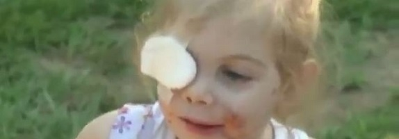 3yo-girl-attacked-by-pit-bulls